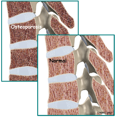 What happens to bones with osteoporosis?