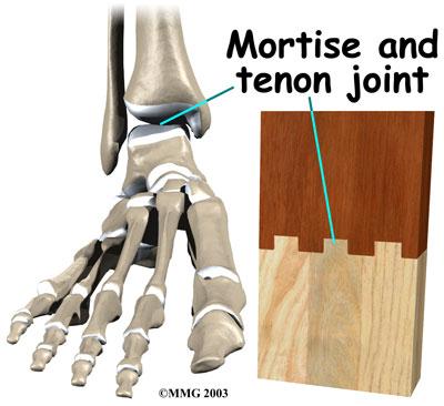 Mortise and Tenon