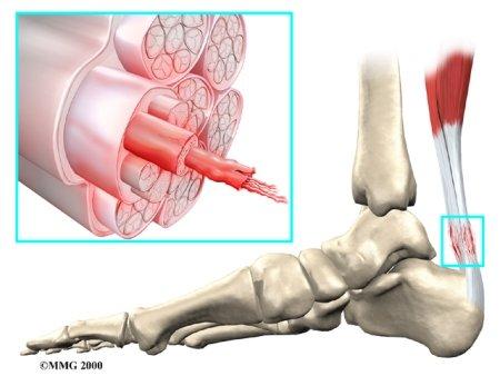 tendonitis achilles