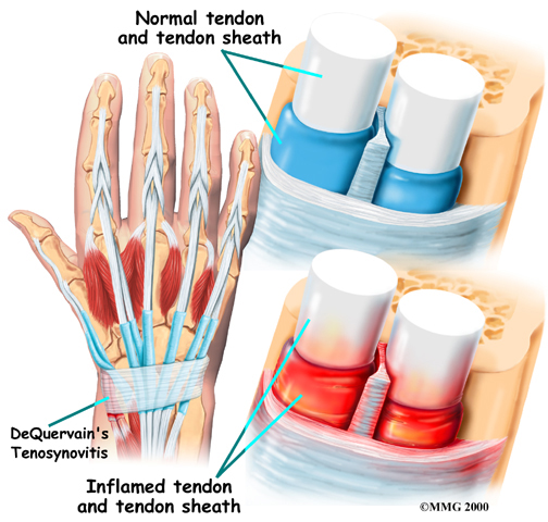 Tendonitis - Be In Motion Physiotherapy