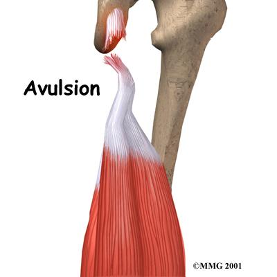 knee hamstring anatomy