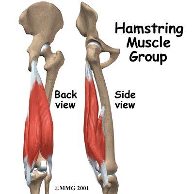 Hamstring Injuries.