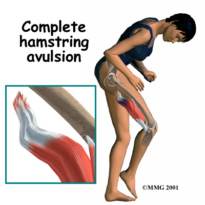 What does a hamstring injury feel like?